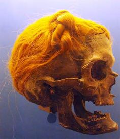 The Suebian knot on the Osterby Man. Photo by Bullenwächter via ...