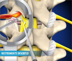 A transformational lumbar interbody fusion is a surgical procedure used to relieve pain and discomfort from the compression of nerve roots in the lumbar spine.  Read more here: http://www.mispinerelief.com/minimally-invasive-tlif/