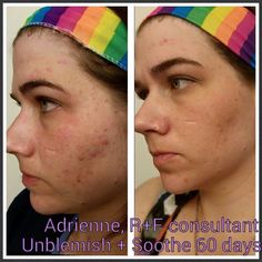 Our Unblemish Regimen & our Soothe Regimen... Often the perfect combo for acne... This stuff WORKS