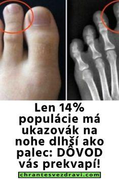 Len 14% populácie má ukazovák na nohe dlhší ako palec: DÔVOD vás prekvapí! Lens, Klance, Lentils