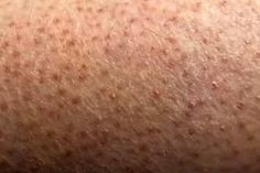 Pictures of Bumps on Skin: Cysts, Skin Tags, Lumps, and More Skin Bumps, Skin Tag, Skin Problems, Skin Care Remedies, Tags, Allergies, Pictures, Photos, Skin Care Products