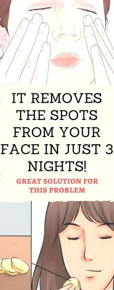 It Removes All Spots On Your Face In Just 3 Nights - Health & Fitness & Remedy Facial Treatment, Beauty Care, Beauty Hacks, Beauty Ideas, Diy Beauty, Face And Body, Skin Care Tips, Skin Tips, Healthy Skin