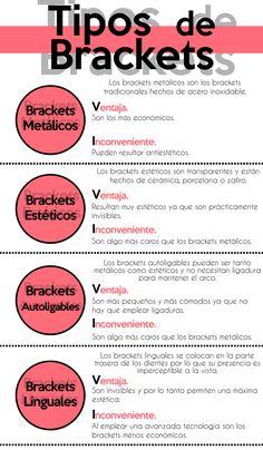 Tipos de brackets #ortodoncia