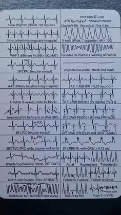 EKG Heart Rhythms Cheat Sheet The ultimate guide to EKG (ECG) interpretation for nurses. Most Nurses Have to Interpret EKG Rhythms Every Day. Our FREE Cheat Sheet Will Make Recognizing the Difference Second Nature. Nursing Articles, Nursing Tips, Nursing Cheat Sheet, Nursing Programs, Rn Programs, Nursing Process, Nursing Resume, Certificate Programs, Nclex