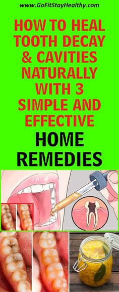 HOW TO HEAL TOOTH DECAY & CAVITIES NATURALLY WITH 3 SIMPLE EFFECTIVE HOME REMEDIES