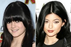 Image result for kylie jenner before and after lips done