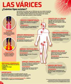 Las várices#informacion #enfermedades