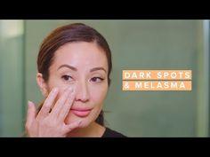 Reduce Melasma & Dark Spots with This Skincare Routine Concealer, Best Dark Spot Corrector, Serum, Pca Skin, Beauty Youtubers, Acne Prone Skin, Dark Spots, Skin Care Tips, Fitness