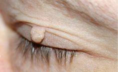 Fibróm: Ako odstrániť otravné kožné výrastky?