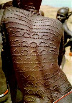 Scarification is widely performed across Africa. The practice of incising the skin with a sharp instrument. Cicatrisation is a special form of scarification, whereby a gash is made in the skin with a sharp instrument & irritation of the skin. Dark pigments such as ground charcoal or gunpowder are rubbed in to provide emphasis. These cuts, when healed form keloids. The most complicated cicatrisation was found in the Congo Basin and neighbouring regions, and among the Akan speakers of West…