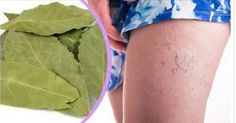 Get Rid Of Varicose Veins Only some people know that laurel leaves besides being used in the kitchen can also be very beneficial for our health. Laurel leaves are used to prepare an excellent medicinal oil that possesses a lot Varicose Vein Remedy, Varicose Veins, Natural Home Remedies, Kefir, Health Advice, Healthy Tips, Health And Beauty, Rid, The Cure