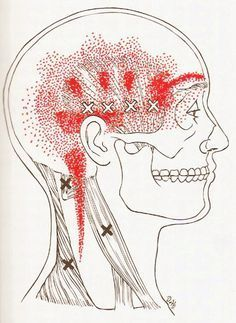 Trigger Point Pain Patterns Resulting From Trigger Points In The Trapezius And Cervical Muscles