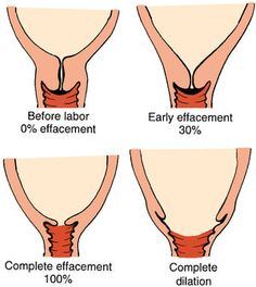 Ever Wonder Exactly What Happens During Childbirth? Check Out This Visual Guide: How the Cervix Opens to Give Birth