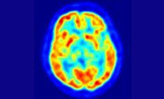 Des cerveaux en colloque à Arcachon pour combattre la maladie d'Alzheimer