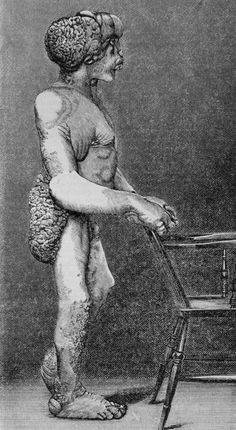 Joseph Merrick, the Elephant Man, illustrating the deformities caused by neurofibromatosis, 1886 Joseph Merrick, John Merrick, Queen Videos, Sideshow Freaks, Neon Quotes, Human Oddities, Freaks And Geeks, How To Make Light, Vintage Photos