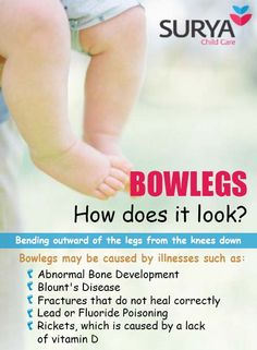 Know about Bowlegs - How does it look ?? ‪#‎suryachildcare‬ ‪#‎Pediatric‬ ‪#‎orthopedic‬