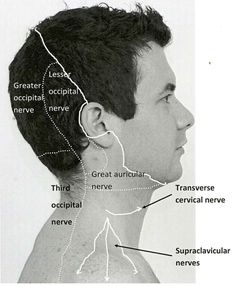 Acupuncture Migraine Occipital Nerve Areas and tension headaches leading to pain in the neck and other parts of the body. They can have a serious affect on the body. Migraine Pain, Chronic Migraines, Migraine Relief, Chronic Fatigue, Chronic Pain, Fibromyalgia, Chronic Illness, Pain Relief, Occipital Neuralgia