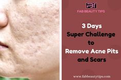 Are you tired of Acne Scars? Then this Article is for you. Try these simple Home Remedies to remove acne scars in 3 days. How To Clear Pimples, How To Remove Pimples, Remove Acne, Acne Pit Scars, Pimple Scars, Clearing Acne Scars, Facial Scars, Scar Remedies, Natural Acne Remedies