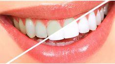 Dişlerinizi nasıl beyazlatırsınız. En etkili diş beyazlatma yöntemi. 2 Dakikada bembeyaz dişlere sahip olun!