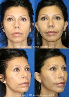 Consider a fat transfer procedure in San Diego - La Jolla California with Dr Karam. Information on fat transfer procedures, full face fat transfer, and micro fat transfers to help restore volume to the face. Fat Transfer, Board Certified Plastic Surgeons, Neck Lift, Brow Lift, Facial Rejuvenation, Before After Photo, Face Contouring, Jawline, Surgery
