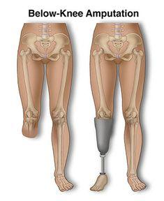 Below Knee Amputation