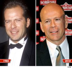 Bruce Willis - at least when you look at his older & newer photos, he still looks like himself, unlike so many actors/actresses these days with their botox & over abundance of plastic surgery they have done