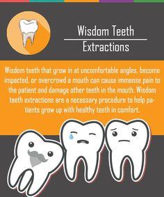 Wisdom Teeth Extractions #Extractions #teeth #wisdom Tooth Extraction Care, Tooth Extraction Aftercare, Dental Health, Oral Health, Dental Care, Top Dental, Dental Hygiene School, Dental Humor, Dental Hygienist
