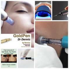Skin Essentials by Mariga clinical treatment collage including gold microneedling, hydroporation, Celluma LED and CryoPen pigmentation removal.