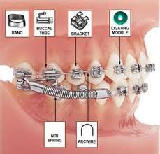 Phase I Early Orthodontic treatment with Braces--Young ...