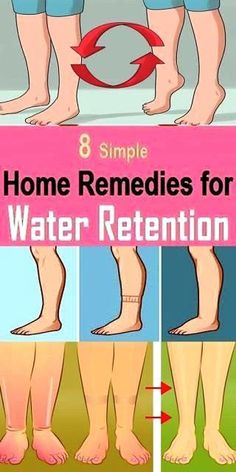 Water retention may happen because of different factors some of which incorporate exorbitant admission of salt, response of the body to damp climate, hormonal changes amid pregnancy, menstrual cycle, menopause and reactions of utilizing oral prophylactic pills among ladies.