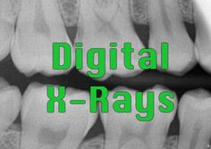 We love our digital #xray system! Take a look at what this technology means for you as a patient.  #ThousandOaksDentist