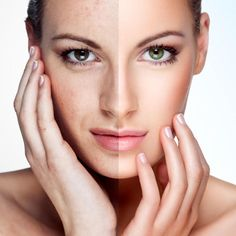 Антиоксиданты в косметике