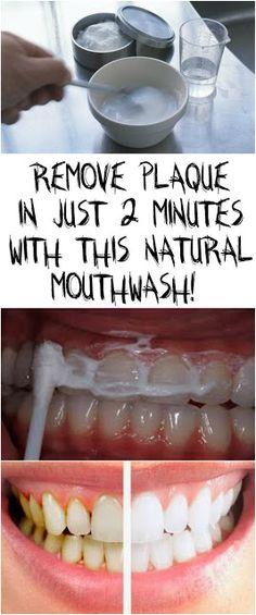 #gums #teeth #tooth #healthy