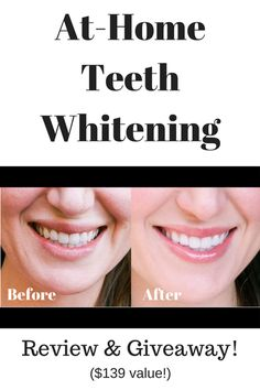 at home teeth whitening, smile brilliant review, teeth whitening trays, at home whitening kit