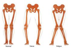 Bow legged rabbit knee pain caused by bow legs,physiotherapy for bow leg how to correct knock knees for ssb,what is billy bowlegs how do you treat bow legs. Hip Strengthening Exercises, Knee Exercises, Genu Varo, Genu Valgum, Franklin Method, Best Exercise For Hips, Glute Medius, Bow Legged Correction, Knock Knees