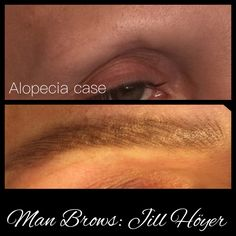 Challenging 'Man Brows' will take 3 detail visits to achieve the dimension needed.