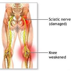 Natural Cure For Sciatica - How To Treat Sciatica Naturally | Natural Home Remedies