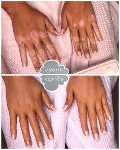 Pour prévenir l'aggravation du vitiligoil est important qu'on mène une vie saine, on minimise l'exposition au soleil et on applique des crèmes et des remèdes naturels pour protéger la peau. Vitiligo ou leucoderme est une maladie de la peau qui touche entre 1% et 2% de la population mondiale. Elle est caractérisée par l'apparition des taches blanches partout dans le corps