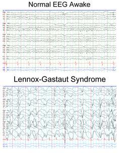 Normal EEG Awake compared to Lennox-Gastaut Syndrome