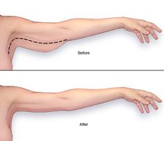 Brachioplasty Trims Size and Shape of Arms by Removing Extra Arm Skin AND Fat: If there is loose or hanging skin, liposuction alone will not work well.  Excess skin and underlying fat should be skillfully removed and remaining skin redistributed more tightly around a smaller arm. FEEL BEAUTIFUL PLASTIC SURGERY  760-753-6464