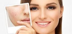 How To Get Rid Of Acne Scars And Pimple Marks Acne is painful and embarrassing. And to make things worse it leaves behind scars that might actually scar you for life! Dont worry we have come up with a list of home remedies that can Skin Care Remedies, Acne Remedies, Pimples On Forehead, Pimples Under The Skin, Pimple Marks, Acne Scar Removal, Beauty Tips For Skin, Beauty Secrets