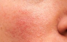 Rosacea and Acne can sometimes co-exist. In this instance treatment should aim at focusing both skin conditions separately as well as together as it is the same person who suffers from both these conditions What Causes Rosacea, Acne Causes, How To Treat Rosacea, Teenage Acne, Vitamin Deficiency, Beauty, Texture, Rosacea