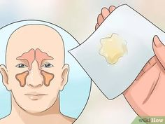 How to Get Rid of Mucus. Nasal mucus is a clear, sticky, liquid that works as a filter to prevent unwanted particles in the air from entering your body through your nose. Mucus is a natural part of your body's defenses, but sometimes it. Getting Rid Of Mucus, Getting Rid Of Phlegm, Infection Des Sinus, Upper Respiratory Infection, Mucus In Throat, Sante Bio, Blackhead Remedies, Body Fitness, Natural Remedies