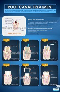 root canal treatment. Dental Assistant, Dental Hygiene, Dental Health, Oral Health, Dental Care, Teeth Health, Health Tips, Dentist Clinic, Dental Hospital