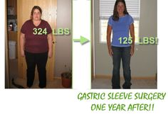 Gastric Sleeve before and after-This has to be my ALL time favorite gastric before and after pics. You can just feel how she changed everything! Her whole energy seems different  in the after pic! I have been researching weight loss surgery in general  and Gastric  sleeve surgery  seems the most natural of the options. I cant weight to get back to just being me!#gastricsleeve #wls