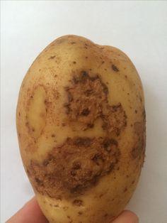 Common scab, Streptomyces scabiei on potatoe
