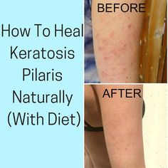 Keratosis pilaris, also known as chicken skin has many different causes. These before and after photos show you how to treat it naturally, or how to get rid of it with diet. Other natural remedies include scrubs, and essential oils. Doterra, Facial Warts, Foods For Healthy Skin, Chicken Skin, Rosacea, Natural Home Remedies, Natural Treatments, Skin Treatments, Acne Scars