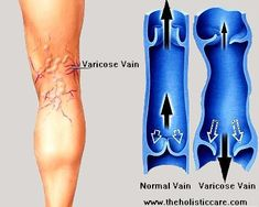 What Are Varicose Veins? Varicose (VAR-i-kos) veins are swollen, twisted veins that you can see just under the surface of the skin that typically have a blue or dark purple appearance. These veins usually occur in the legs, but they also can form in other parts of the body. Varicose veins are a common condition. They usually cause few signs and symptoms. Sometimes varicose veins cause mild to moderate pain, blood clots, skin ulcers (sores), or other problems.