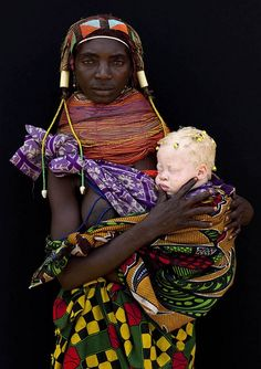 Albino baby girl and her Mumuhuila tribe mother - Angola    This woman was in Hale and came to me, showing a blue cap coming out from her clothes. i first did not understood there was a baby under this cap. Then she opened her clothes to let appear this albino baby girl. She had some little dreadlocks and was incredibly white. The mother was proud to pause for the picture.