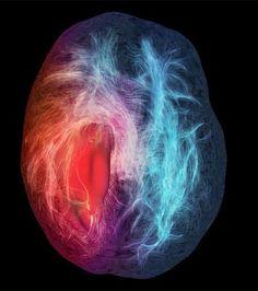 Photo : Cette image représentant la substance blanche du cerveau et ses connections structurales, a été réalisées par des chercheurs au Sherbrooke Connectivity Imaging Lab